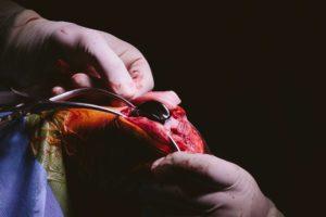 operacion rodilla 4