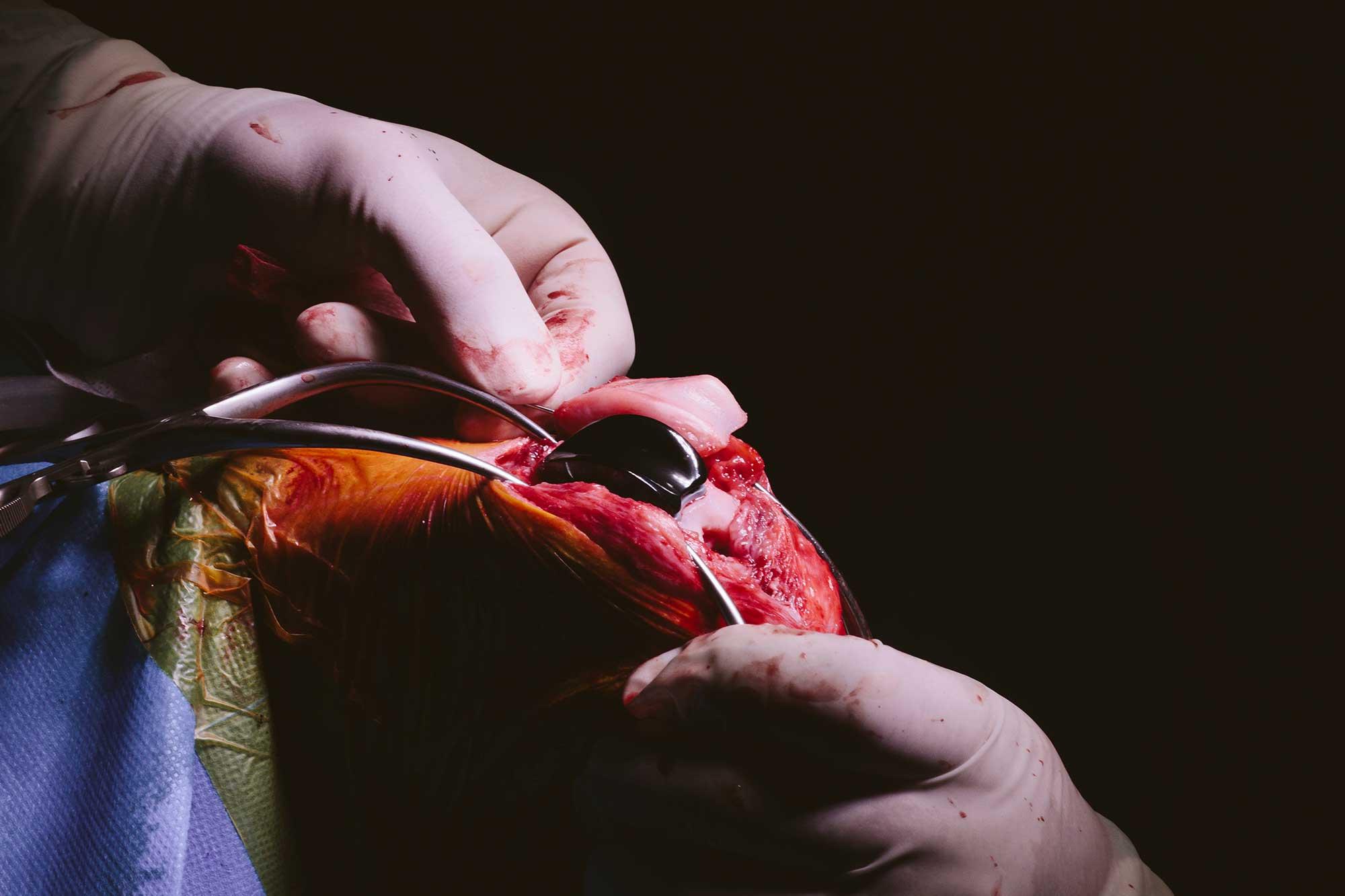Operacion parcial de rodilla en perros