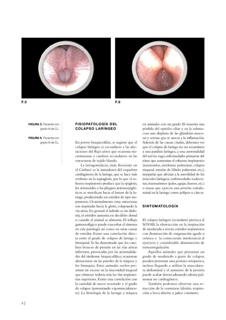 articulo revista Colapso laringeo y CO2 003