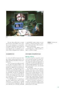 articulo revista Colapso laringeo y CO2 004